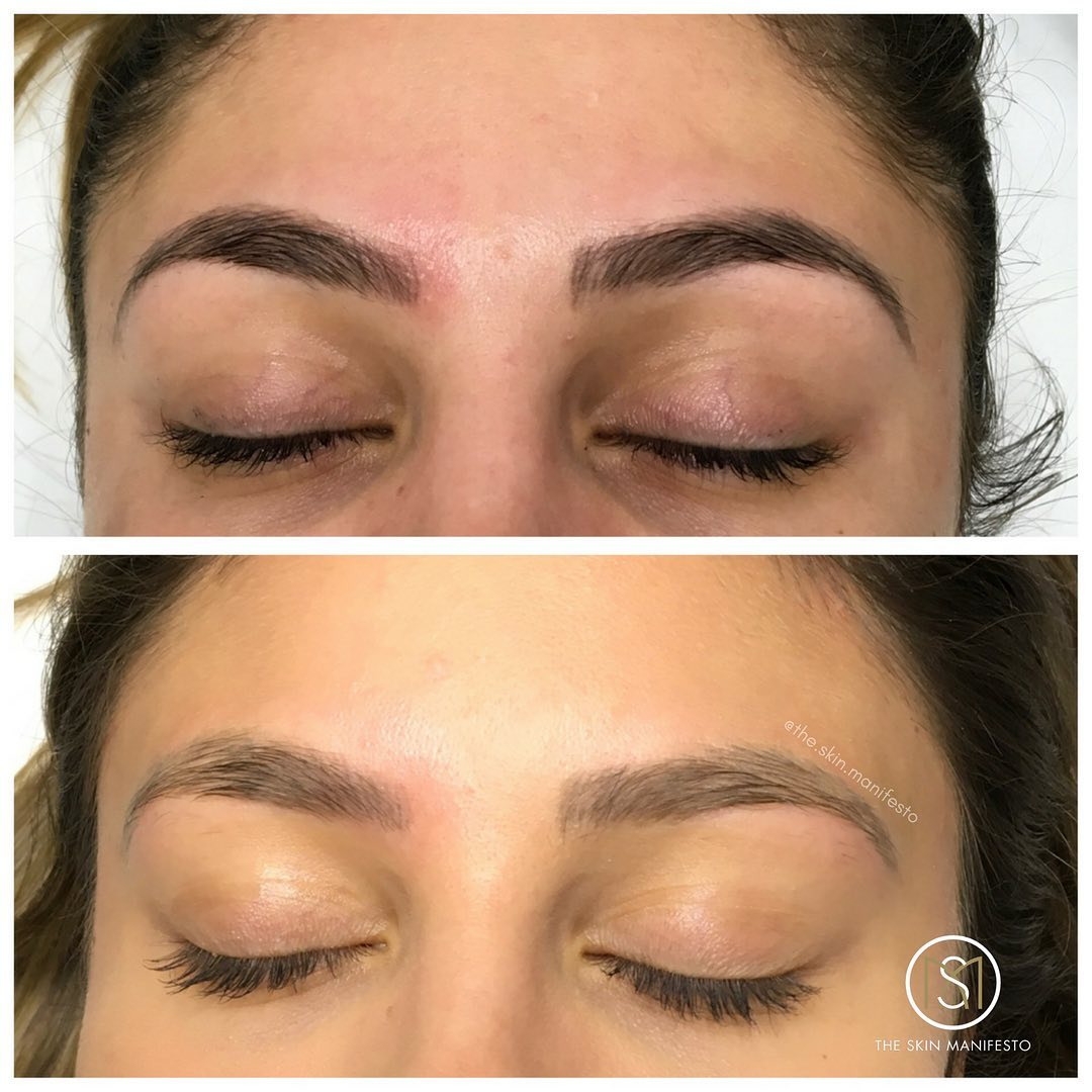 Eyebrow Tattoo Removal The Skin Manifesto